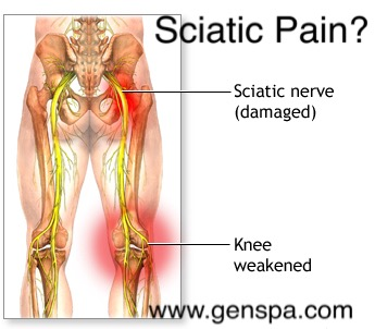 Image Gallery: lower back nerve pain